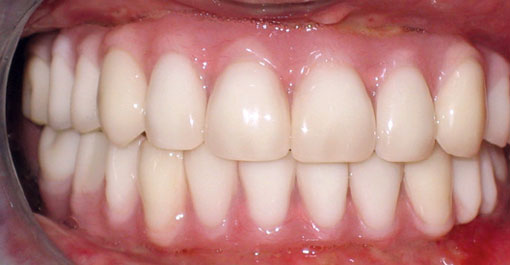 Porcelain Veneers - photo of teeth with veneers