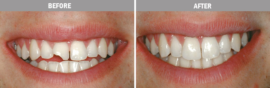 cosmetic-bonding---before-and-after-image2