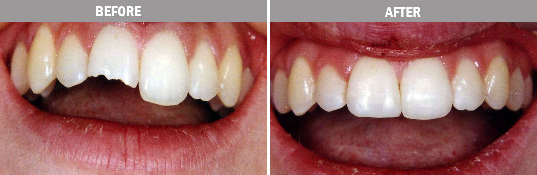 cosmetic-bonding---before-and-after-image3