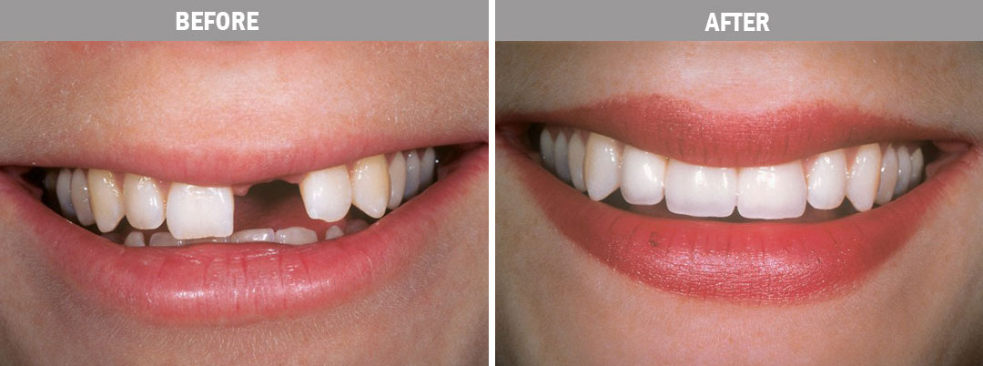 oral-hygiene-dental implants