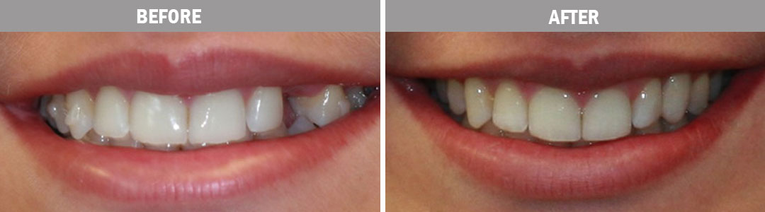 dental-implants-before-after-image4