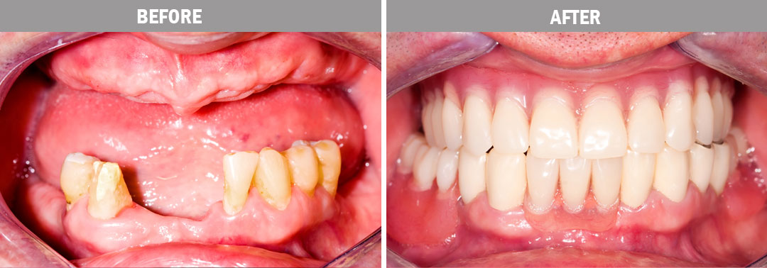 dentures - before and after2