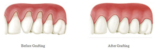 Gum Graft - before and after - mobile