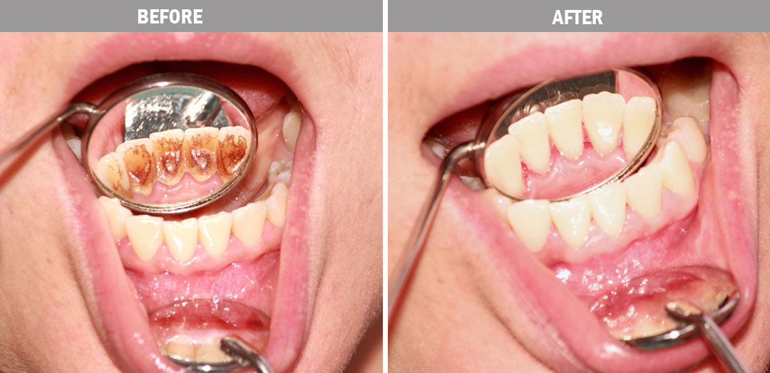 oral-hygiene-before-and-after1