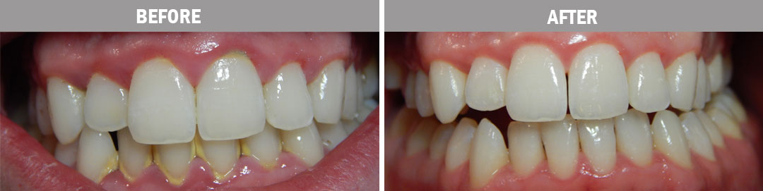 oral-hygiene-before-and-after2