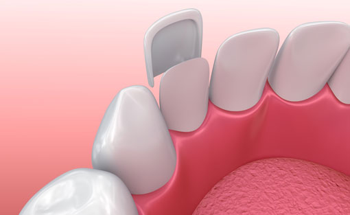 Porcelain Veneers - illustration 1