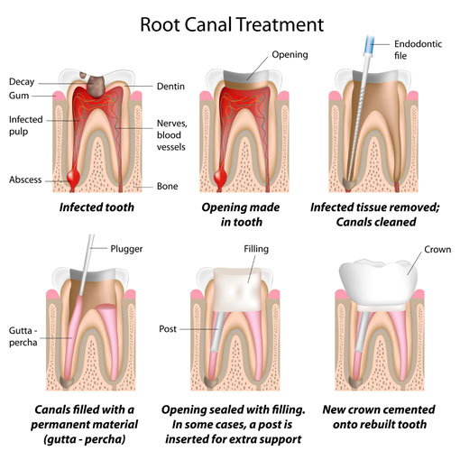 Root Canal Therapy - illustration - mobile