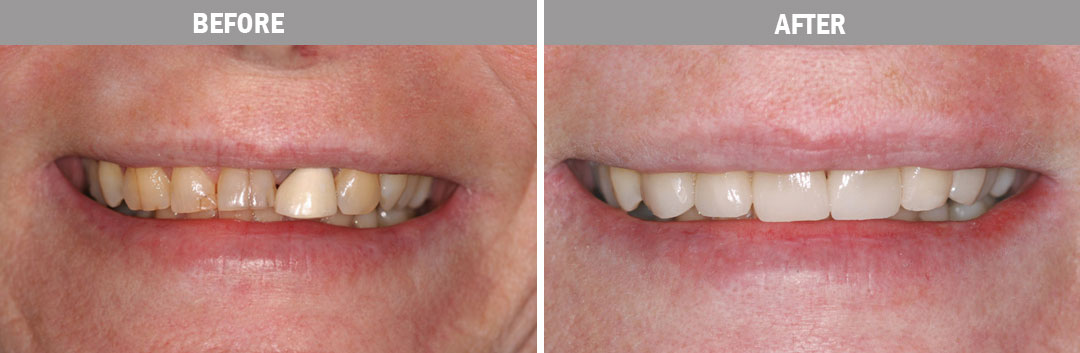 smile-and-makeovers--before-and-after-image1