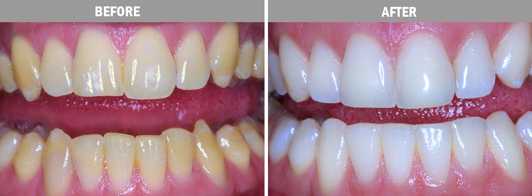 teeth-whitening-before-after-image3