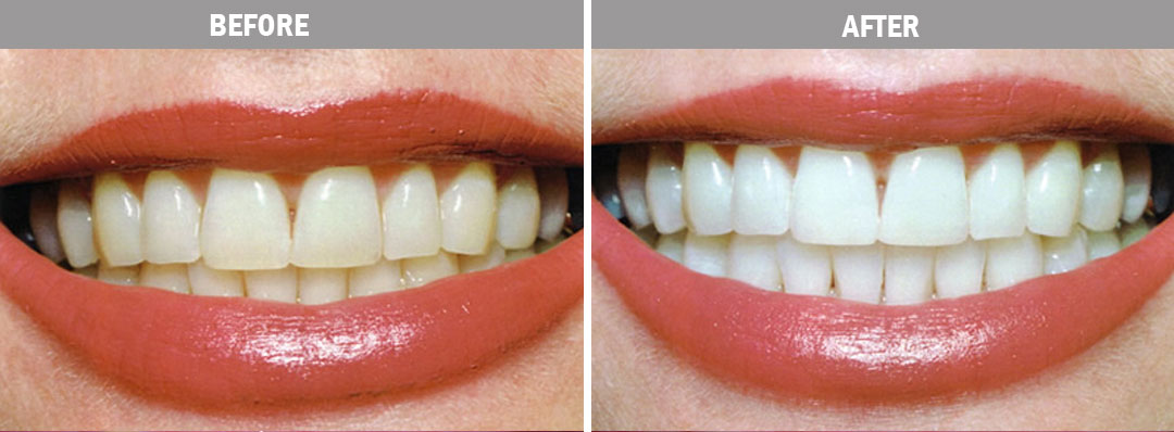 dental-implants-before-after-image3