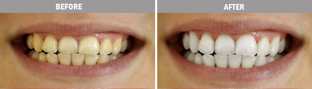 teeth-whitening--before-and-after-image3
