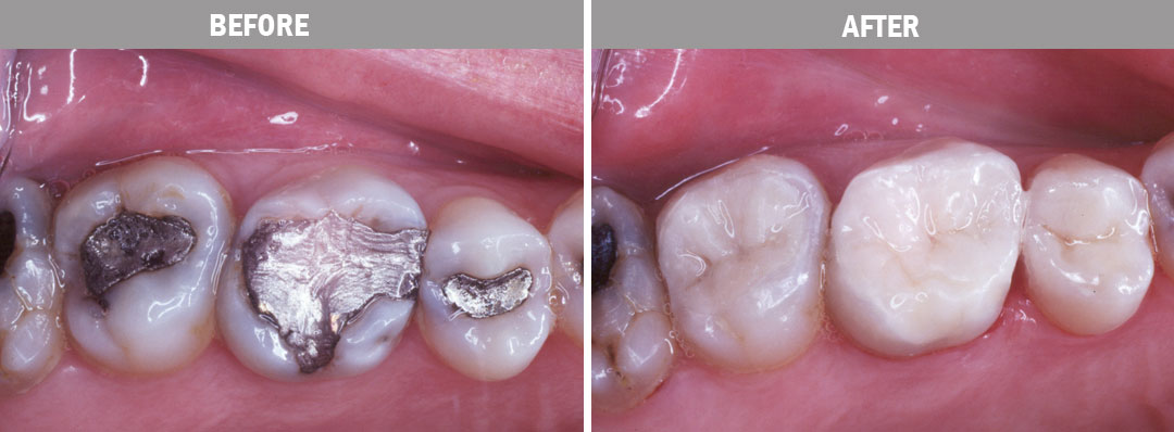 white-fillings-before-and-after-image1
