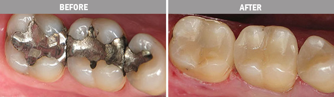 white-fillings-before-and-after-image3