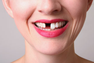 Toronto Dentist - dental implants