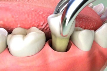 Common Problems - wisdom tooth extraction
